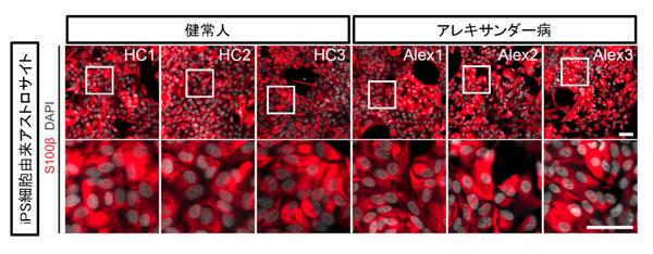 患者さんiPS細胞由来のアストロサイトを用いて脳病理を初めて再現 ~アレキサンダー病の病態解明と創薬への道~|ニュース|ニュース・イベント|CiRA(サイラ) | 京都大学 iPS細胞研究所