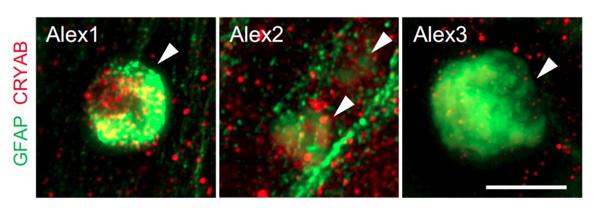 患者さんiPS細胞由来のアストロサイトを用いて脳病理を初めて再現 ~アレキサンダー病の病態解明と創薬への道~ 研究成果 研究活動 CiRA(サイラ)CiRA(サイラ)   京都大学 iPS細胞研究所