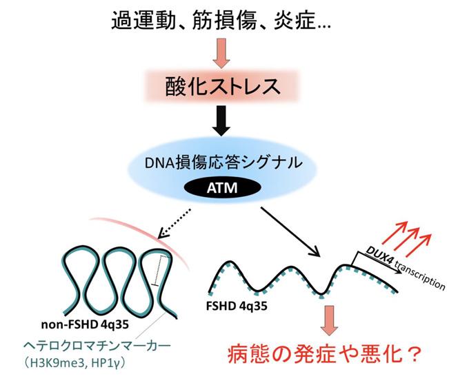 酸化ストレスが顔面肩甲上腕型筋ジストロフィーの原因遺伝子DUX4