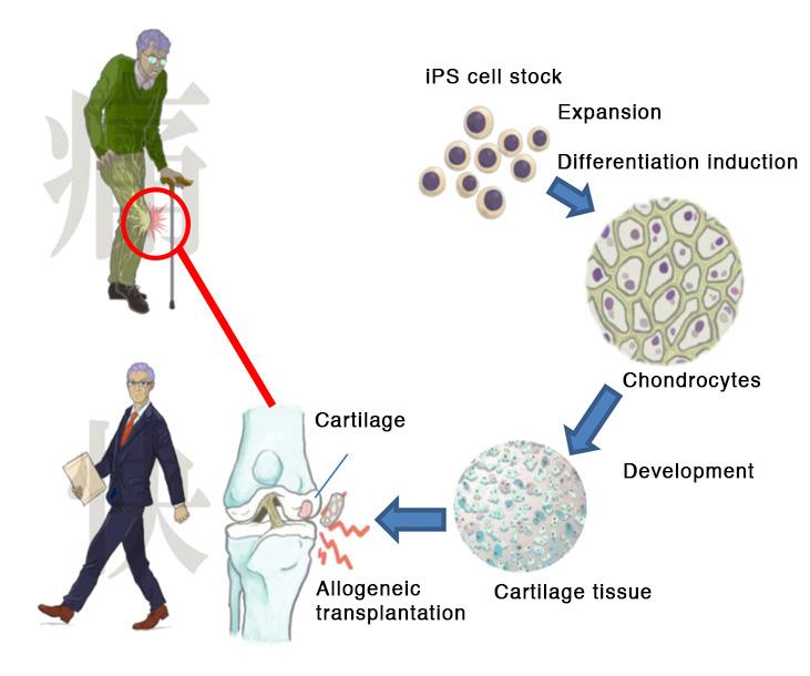 خريطة زراعة الأنسجة الغضروفية في مفاصل رُكب المرضى   عبر جامعة كيوتو
