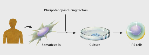 induced pluripotent stem cells pros and cons